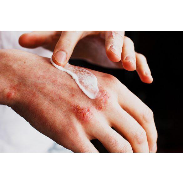 Sebes ekcéma kezelőcsomag szteroidmentesen