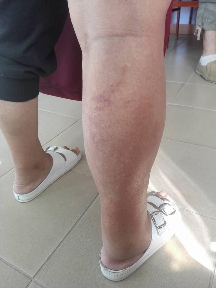 zúzódás pikkelysömör kezelése psoriasis elleni krém