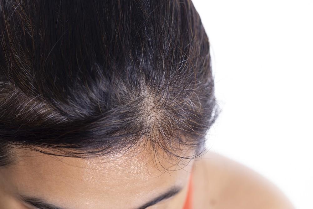 Pikkelysömör a fejbőrön