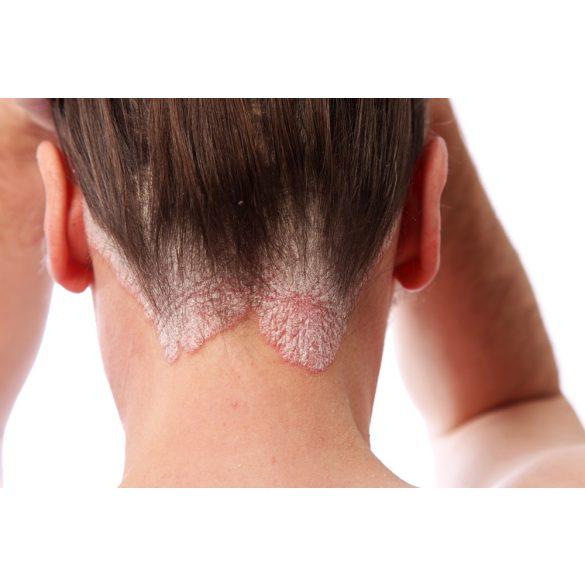 Pikkelysömörös fejbőr  kezelő csomag
