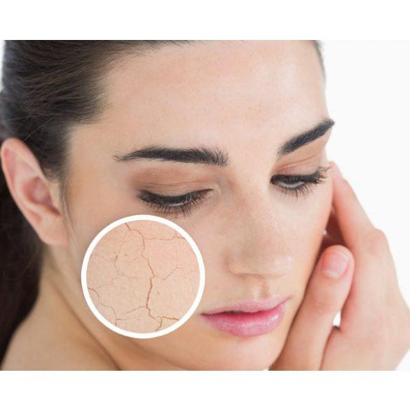 C-vitaminos levendulás krém vízhiányos száraz bőrre
