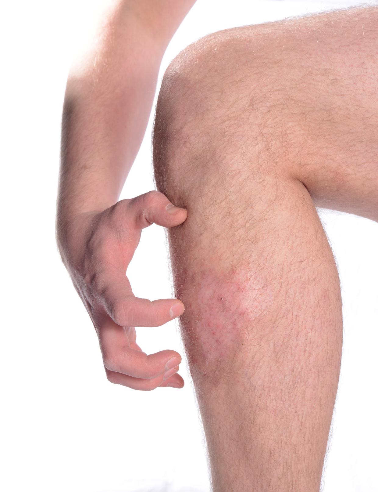 Ekcéma kezelése, avagy bőrápolás komplex módon