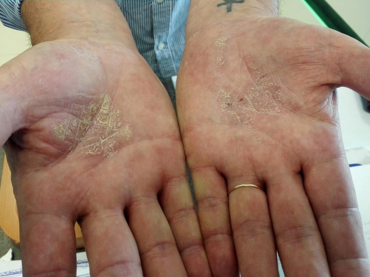 a kéz ujjai között hámlik a vörös folt)